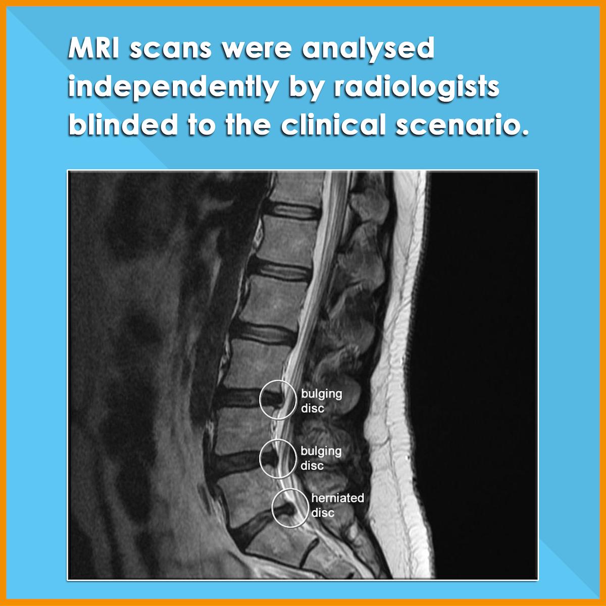 Incidence of Abnormal MRI